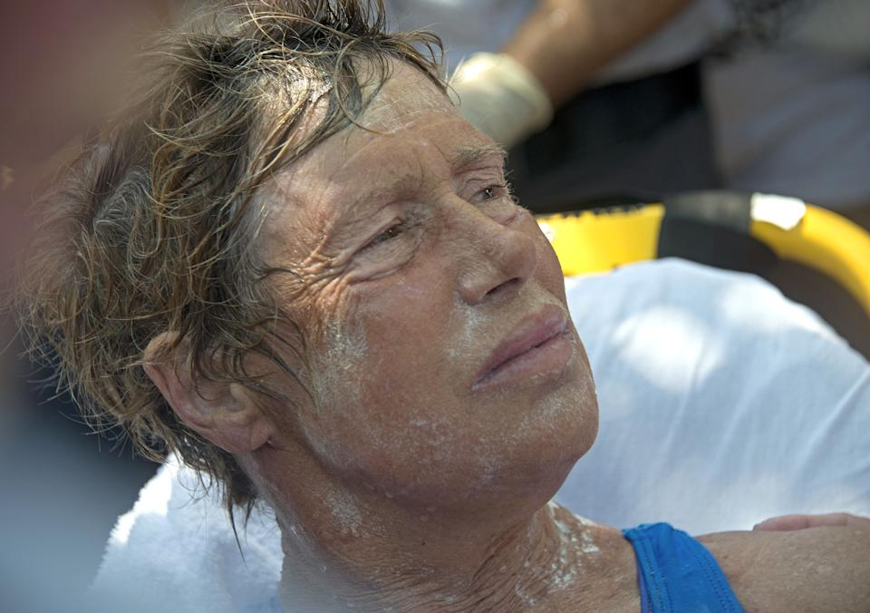 In this photo provided by the Florida Keys News Bureau Diana Nyad receives medical treatment after completing a 111-mile swim from Cuba to Key West, Fla. Nyad, 64, is the first swimmer to cross the Florida Straits without the security of a shark cage. (AP Photo/Florida Keys Bureau, Andy Newman)