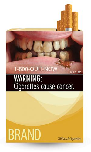 This image provided by the U.S. Food and Drug Administration on Tuesday, June 21, 2011 shows one of nine new warning labels cigarette makers will have to use by the fall of 2012. In the most significant change to U.S. cigarette packs in 25 years, the FDA's the new warning labels depict in graphic detail the negative health effects of tobacco use. (AP Photo/U.S. Food and Drug Administration)