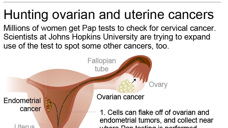 Graphic shows pap smear method of detecting a variety of gynecological cancers