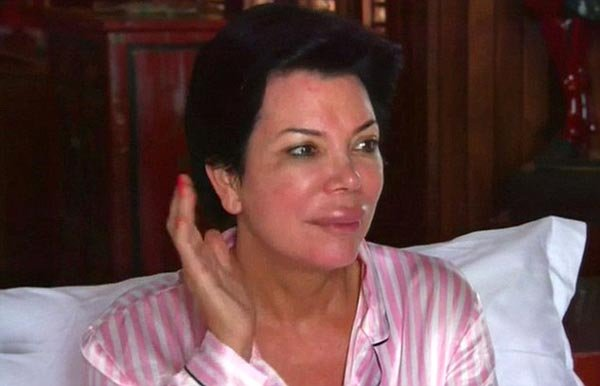 'Keeping Up With The Kardashians' Preview: Kris Jenner Gets Giant Inflated Lips