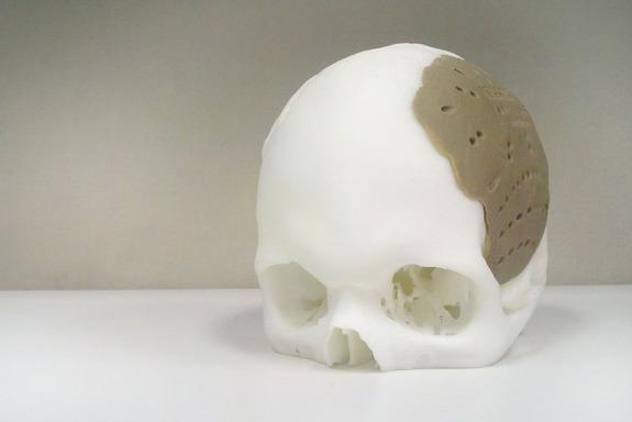 3D-Printed Skull Implant Ready for Operation