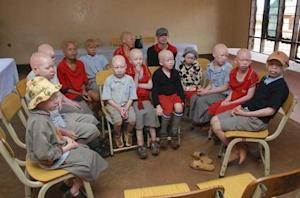Children with albinism sit at the Golden Valley English Medium School in Geita