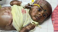 LD baby spontaneous combustion nt 130822 16x9 608 Doctors Investigate Indian Baby for Spontaneous Combustion