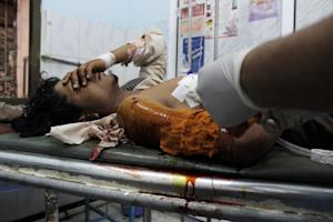 A wounded Yemeni man arrives at a hospital after he…