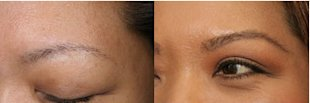 1114-eyebrow-before-afte_bd-2.jpg