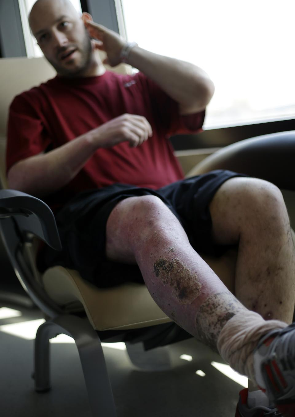 Boston Marathon bombing victim James Costello speaks about his injuries at Spaulding Rehabilitation Hospital in Boston's Charlestown section, Friday, May 10, 2013. (AP Photo/Elise Amendola)
