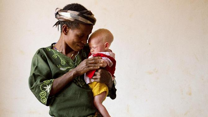 "This photo taken Aug. 31, 2012 shows Helen Sekalima holding her infant, Jessica, at the Kabanga Protectorate Center in Kabanga, Tanzania. Of Helen's nine children, three have albinism. All three live in the center. ""The people in the village said that the children are not normal people, that they are like devils,"" she said. Her husband was attacked protecting their oldest son from attackers, and now has limited mobility in his arm. In danger from witch doctors, Tanzania's albinos hope their government will start to offer more help. (AP Photo/Jacquelyn Martin)"