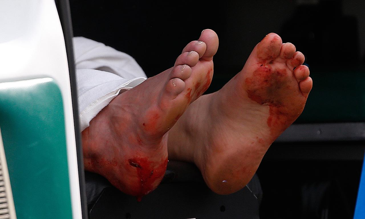 BOSTON, MA - APRIL 15:  Two blood stained feet of a man hang outside an ambulance outside a medical tent located near the finish of the 117th Boston Marathon after two bombs exploded on the marathon route on April 15, 2013 in Boston, Massachusetts. Two people are confirmed dead and at least 23 injured after two explosions went off near the finish line to the marathon. (Photo by Jim Rogash/Getty Images)