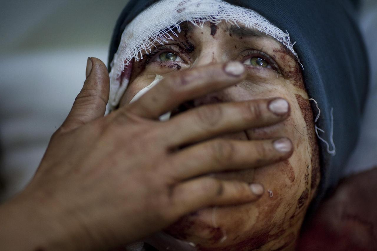 In this photo provided on Friday Feb. 15, 2013 by World Press Photo, the 1st prize General News Single by Rodrigo Abd, Argentina, for The Associated Press, Aida cries while recovering from severe injuries she received when her house was shelled by the Syrian Army. Her husband and two children were fatally wounded during the shelling in Idib, north Syria, March 10, 2012. (AP Photo/Rodrigo Abd)