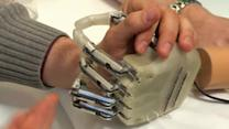First bionic hand with real feeling