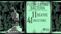 Health Warnings About Flesh-Eating Bacteria in Florida