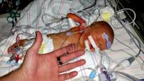 Six-day old newborn survives rare heart surgery