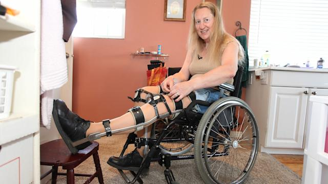 Woman Wants To Be Permanently Paralysed: Body Integrity Identity Disorder