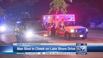 Man shot in cheek on Lake Shore Drive